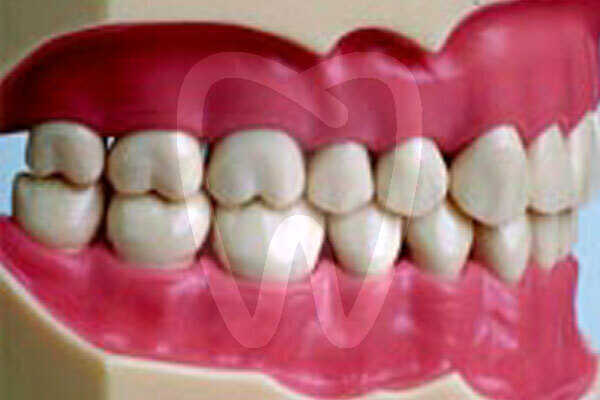 Product - MODEL WITH 32 SCREW FIXED TEETH & GUM