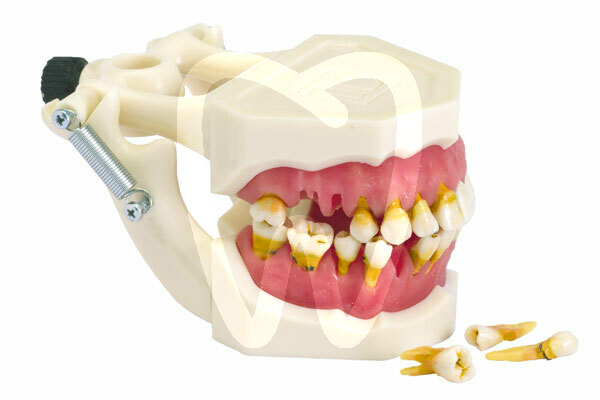 Product - HUMAN MOUTH MODEL WITH PATHOLOGIES