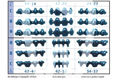 Product - WAX PONTICS WITHOUT COLLAR SET X 54 PIECES