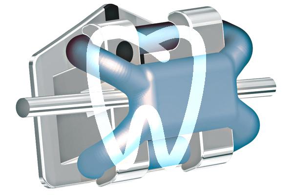 Product - SLIDE LOW FRICTION ELASTIC LIGATURES