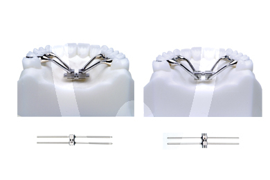 Product - RAPID EXPANDER WITH ORTHOGONAL ARMS