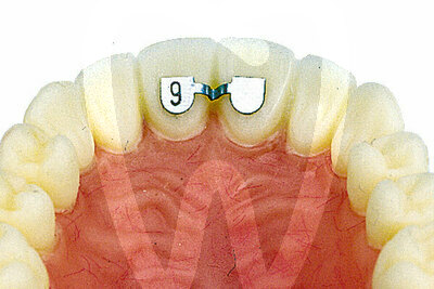 Product - LINGUAL RETAINER CENTER TO CENTER UPPER