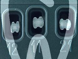 Product - BRACKET FIBRE DE VERRE EDGEWISE .022 N° 13/23/14/24/15/25/33/43/34/44/35/45