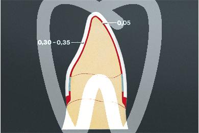 Product - ADAPTA DISCHI TRASPARENTI 0,6 mm